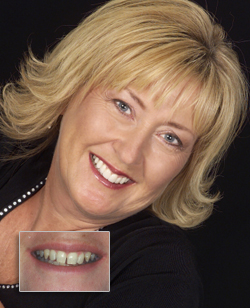 Cosmetic Dentistry in Cornwall